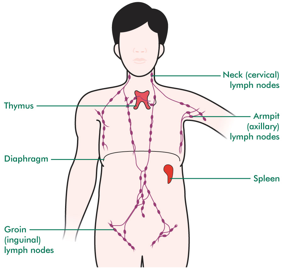 lymphatic cancer awareness week - macmillan's cancer information, Cephalic Vein