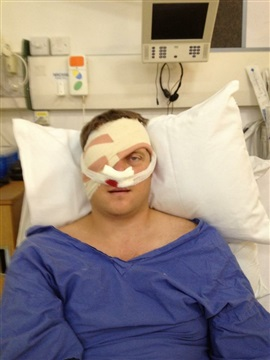 A photo of Dan in a hospital bed, with bandaging over one eye and under the nose.